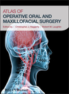 Atlas of Operative Oral and Maxillofacial Surgery (1118442342) cover image