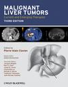 Malignant Liver Tumors: Current and Emerging Therapies, 3rd Edition (1405179767) cover image