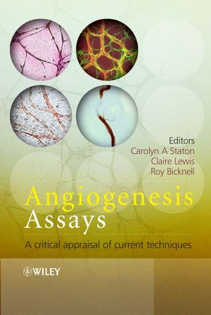 Angiogenesis Assays: A Critical Appraisal of Current Techniques (0470016000) cover image