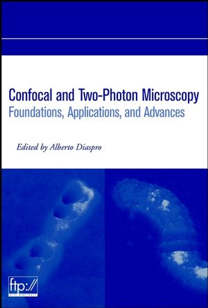 Confocal and Two-Photon Microscopy: Foundations, Applications and Advances