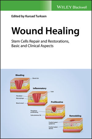Wound Healing: Stem Cells Repair and Restorations, Basic and Clinical Aspects