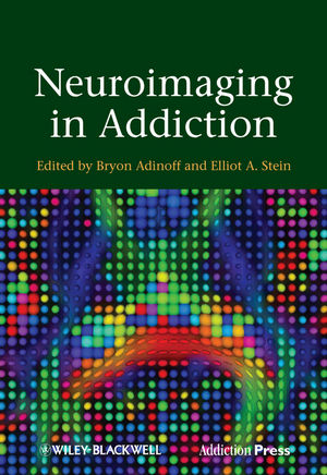 Neuroimaging in Addiction (1119972701) cover image