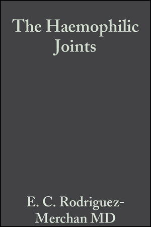 The Haemophilic Joints: New Perspectives