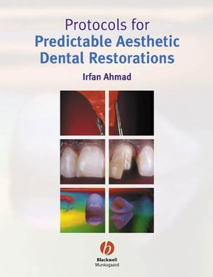 Protocols for Predictable Aesthetic Dental Restorations (1405118202) cover image