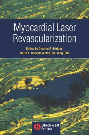 Myocardial Laser Revascularization