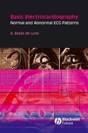 Basic Electrocardiography: Normal and Abnormal ECG Patterns (1405175702) cover image