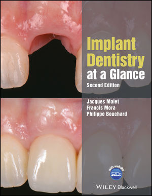 Implant Dentistry at a Glance, 2nd Edition
