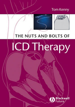 The Nuts and Bolts of ICD Therapy (1444356704) cover image