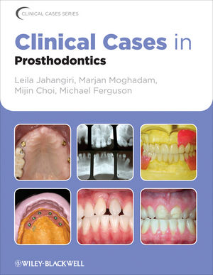 Clinical Cases in Prosthodontics (0470961805) cover image