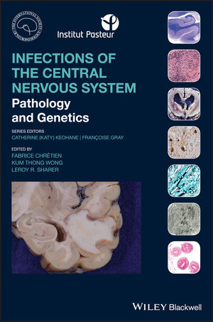 Infections of the Central Nervous System: Pathology and Genetics