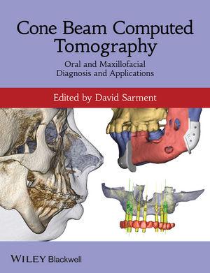 Cone Beam Computed Tomography: Oral and Maxillofacial Diagnosis and Applications (0470961406) cover image