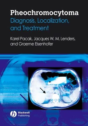 Pheochromocytoma: Diagnosis, Localization, and Treatment (1405149507) cover image