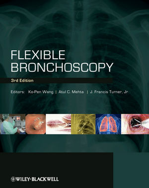 Flexible Bronchoscopy, 3rd Edition (1444346407) cover image