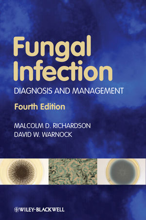 Fungal Infection: Diagnosis and Management, 4th Edition (1444361007) cover image