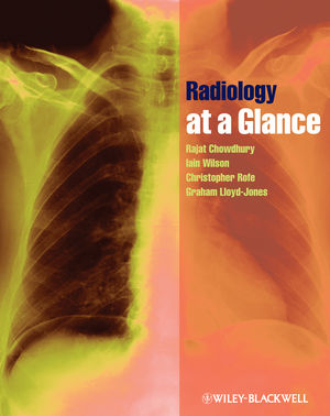 Radiology at a Glance (1405192208) cover image