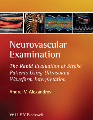 Neurovascular Examination: The Rapid Evaluation of Stroke Patients Using Ultrasound Waveform Interpretation (1405185309) cover image