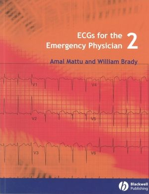ECGs for the Emergency Physician 2 (1405157011) cover image