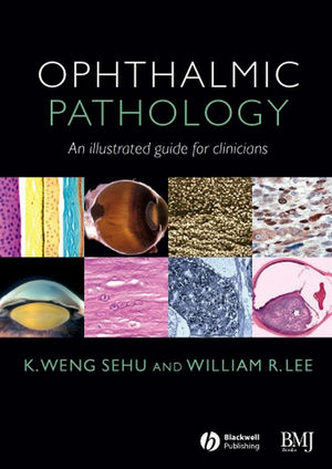 Ophthalmic Pathology: An Illustrated Guide for Clinicians