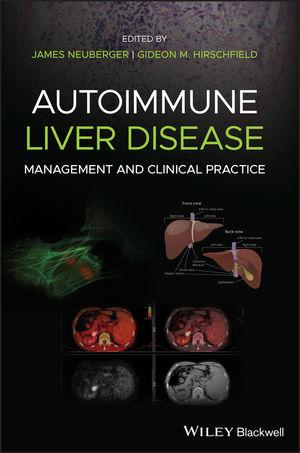 Autoimmune Liver Disease: Management and Clinical Practice
