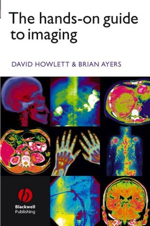 The Hands-on Guide to Imaging (1405140216) cover image