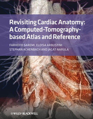 Revisiting Cardiac Anatomy: A Computed-Tomography-Based Atlas and Reference (1444348116) cover image