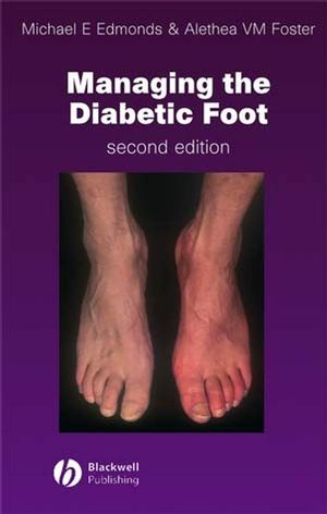 Managing the Diabetic Foot, 2nd Edition