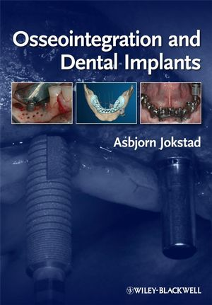 Osseointegration and Dental Implants (0813813417) cover image