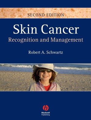 Skin Cancer: Recognition and Management, 2nd Edition