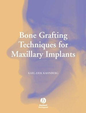 Bone Grafting Techniques for Maxillary Implants (1405171618) cover image