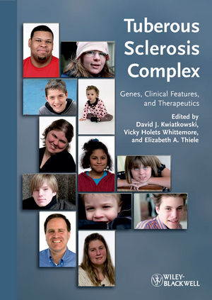 Tuberous Sclerosis Complex: Genes, Clinical Features and Therapeutics (3527322019) cover image