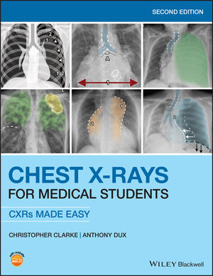 Chest X-Rays for Medical Students, 2nd Edition