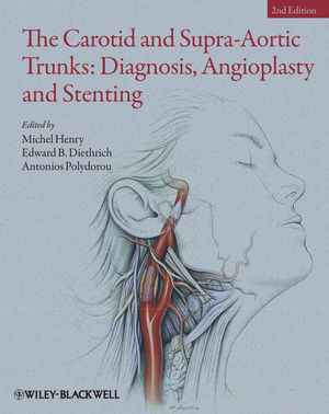The Carotid and Supra-Aortic Trunks: Diagnosis, Angioplasty and Stenting, 2nd Edition (1444329820) cover image