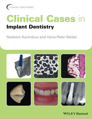 Clinical Cases in Implant Dentistry (1119019923) cover image