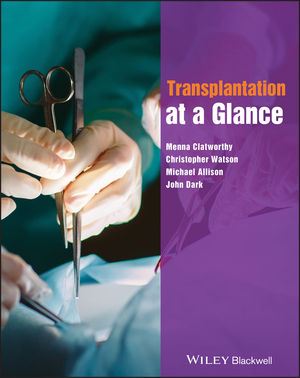 Transplantation at a Glance (0470658428) cover image