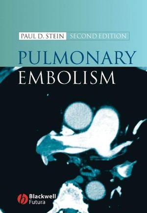 Pulmonary Embolism, 2nd Edition