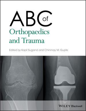 ABC of Orthopaedics and Trauma