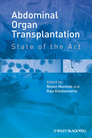 Abdominal Organ Transplantation: State of the Art (1444334328) cover image