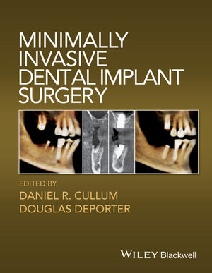 Minimally Invasive Dental Implant Surgery (0813814529) cover image