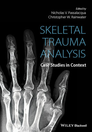Skeletal Trauma Analysis: Case Studies in Context