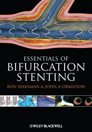 Bifurcation Stenting (144433462X) cover image