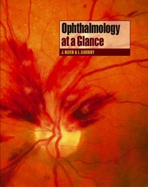 Ophthalmology at a Glance (0632064730) cover image