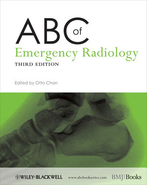 ABC of Emergency Radiology, 3rd Edition (0470670932) cover image