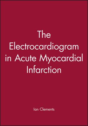 The Electrocardiogram in Acute Myocardial Infarction