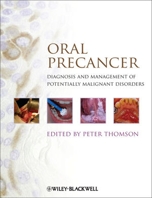 Oral Precancer: Diagnosis and Management of Potentially Malignant Disorders (1118346432) cover image