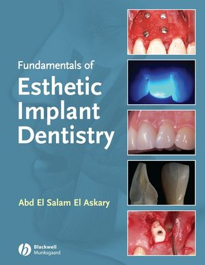 Fundamentals of Esthetic Implant Dentistry, 2nd Edition (0470376333) cover image