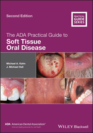 The ADA Practical Guide to Soft Tissue Oral Disease, 2nd Edition