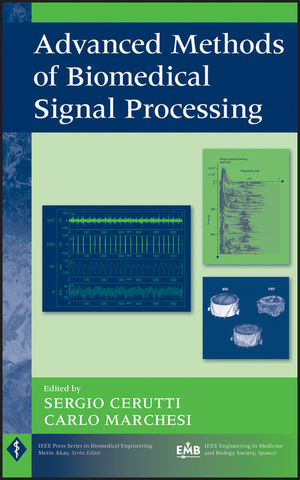 Advanced Methods of Biomedical Signal Processing (1118007735) cover image