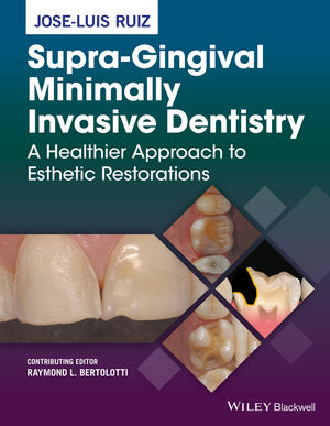 Supra-Gingival Minimally Invasive Dentistry: A Healthier Approach to Esthetic Restorations (1118976436) cover image
