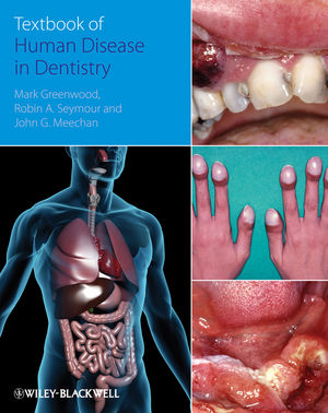 Textbook of Human Disease in Dentistry (1405170336) cover image