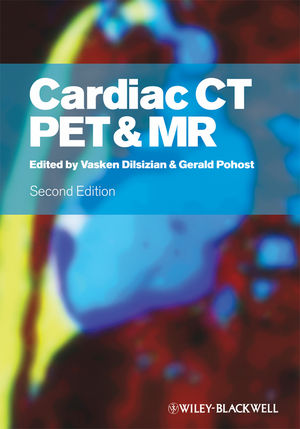 Cardiac CT, PET and MR, 2nd Edition (1405185538) cover image